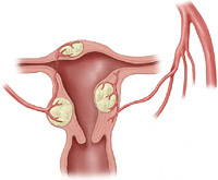 Uterine fibroid illustration