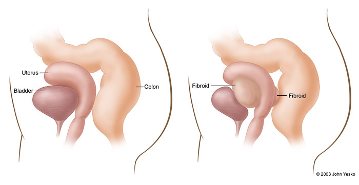 submucosal fibroid size